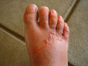 Hookworm-Foot